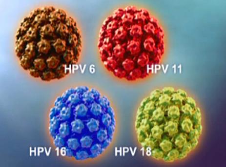 HPV Penyebab Kanker Serviks Pada Wanita